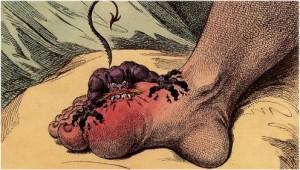 Gicht ist keine moderne Krankheit. Bild von James Gillray aus dem Jahre 1799.