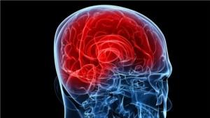 Hirnstimulationstechniken bei schweren Erkrankungen des Gehirns