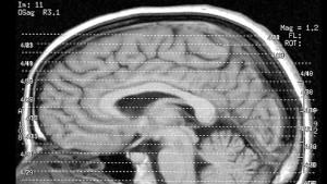 Entdeckung bietet neue therapeutische Perspektiven