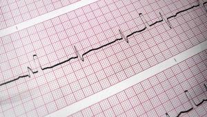 Bessere Überlebenschancen bei Herzinfarkt trotz Risikofaktoren