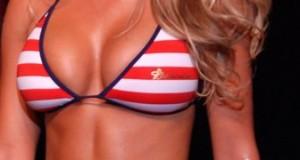 Minderwertige Brustimplantate – das Dekolleté als Zeitbombe