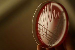 Mehr Kinder erkranken an Tuberkulose
