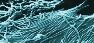 Ebola-Virus in West Afrika ausgebrochen