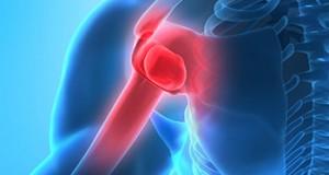 Knochennekrose: HBO-Therapie kann OP vermeiden