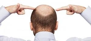 Haartransplantation: Neue Hoffnung bei Haarausfall